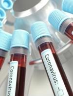 Ukraine reports 2,462 new coronavirus cases