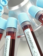 Ukraine reports 1,318 new coronavirus cases in past 24 hours