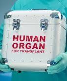VR has adopted a law permitting organ transplantation